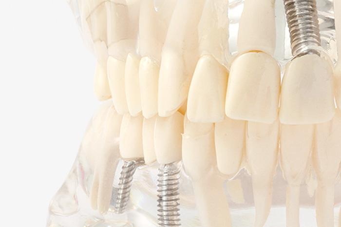 抜歯即時インプラントとは