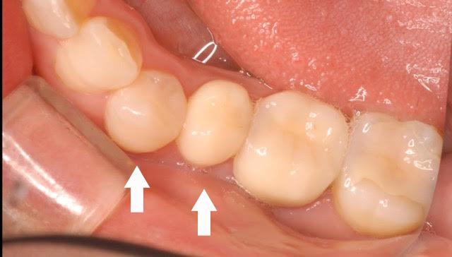 ジルコニアハイグレード(大臼歯)