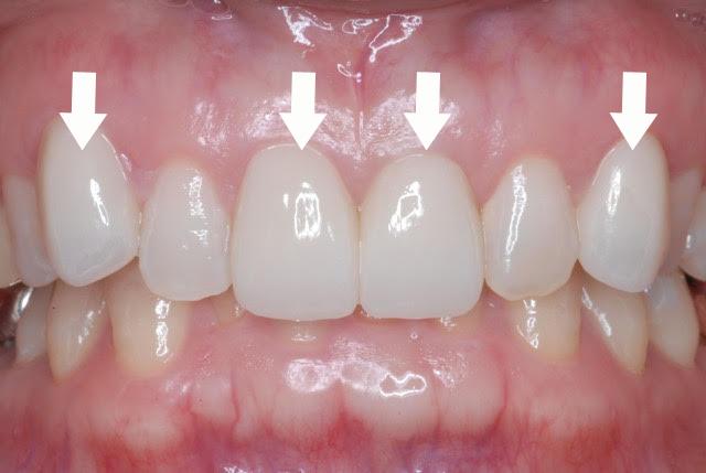 ジルコニアセラミック(小臼歯)